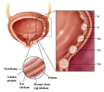 mesane tümörü evreleme