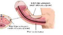 Eğri Penis ve Peyronie Hastalığı