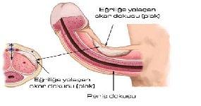 eğri penis, peyronie hastalığı