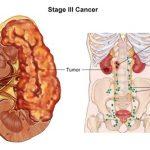 3. evre böbrek kanseri