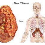 4. evre böbrek kanseri