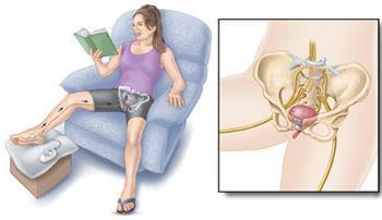 idrar kaçırmada ayak sinirinin uyarılması tedavisi nörostimülasyon