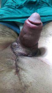 penis büyütme ameliyatı sonrası