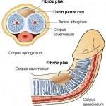 peyronie hastalığı