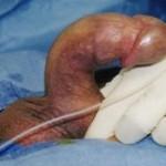peyronie hastasında şiddetli eğrilik