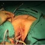 tvt ameliyatı esnasında iğnelerin karından çıkarılması